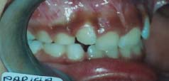 Class 2 div 2 Malocclusions - Teeth back and Gummy smile