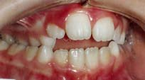 Open Bite Malocclusions - Some teeth do not meet