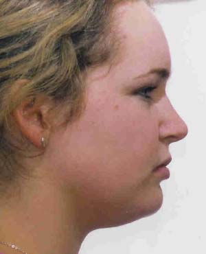 Temporo-Mandibular Disfunction - Painful Jaw Joints