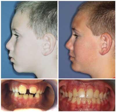Orthotropics treatment picture