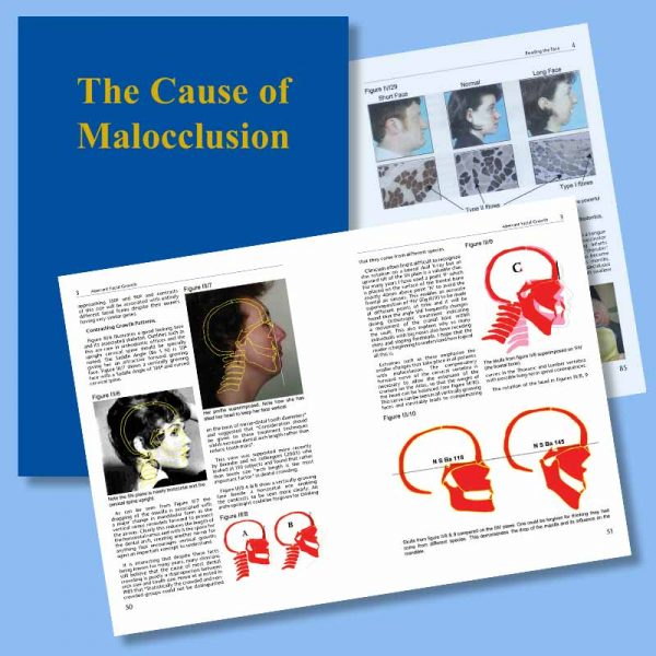 The Cause and Cure of Malocclusion book by John Mew