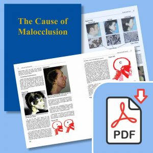 The Cause and Cure of Malocclusion e-book by John Mew
